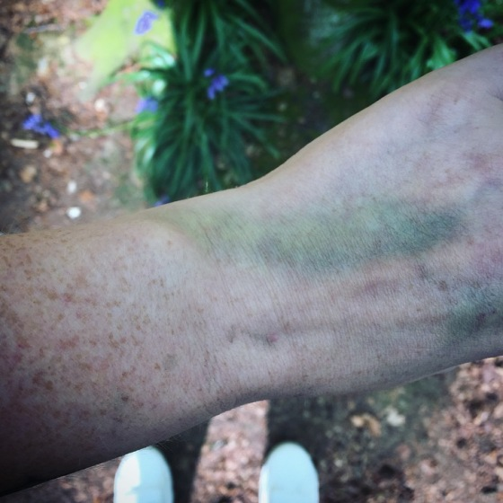 Bruises and bluebells